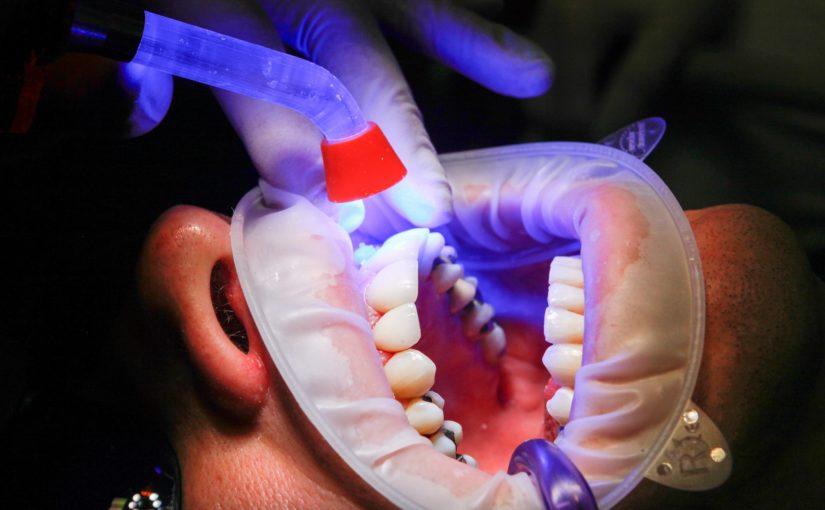 Złe postępowanie żywienia się to większe ubytki w ustach a dodatkowo ich zgubę