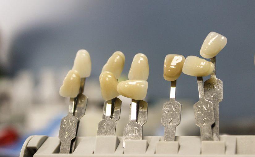 Przepiękne urodziwe zęby dodatkowo niesamowity cudny uśmieszek to powód do płenego uśmiechu.